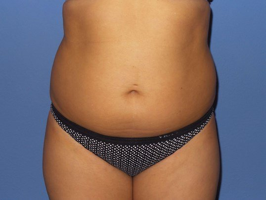 SculpSure results Before