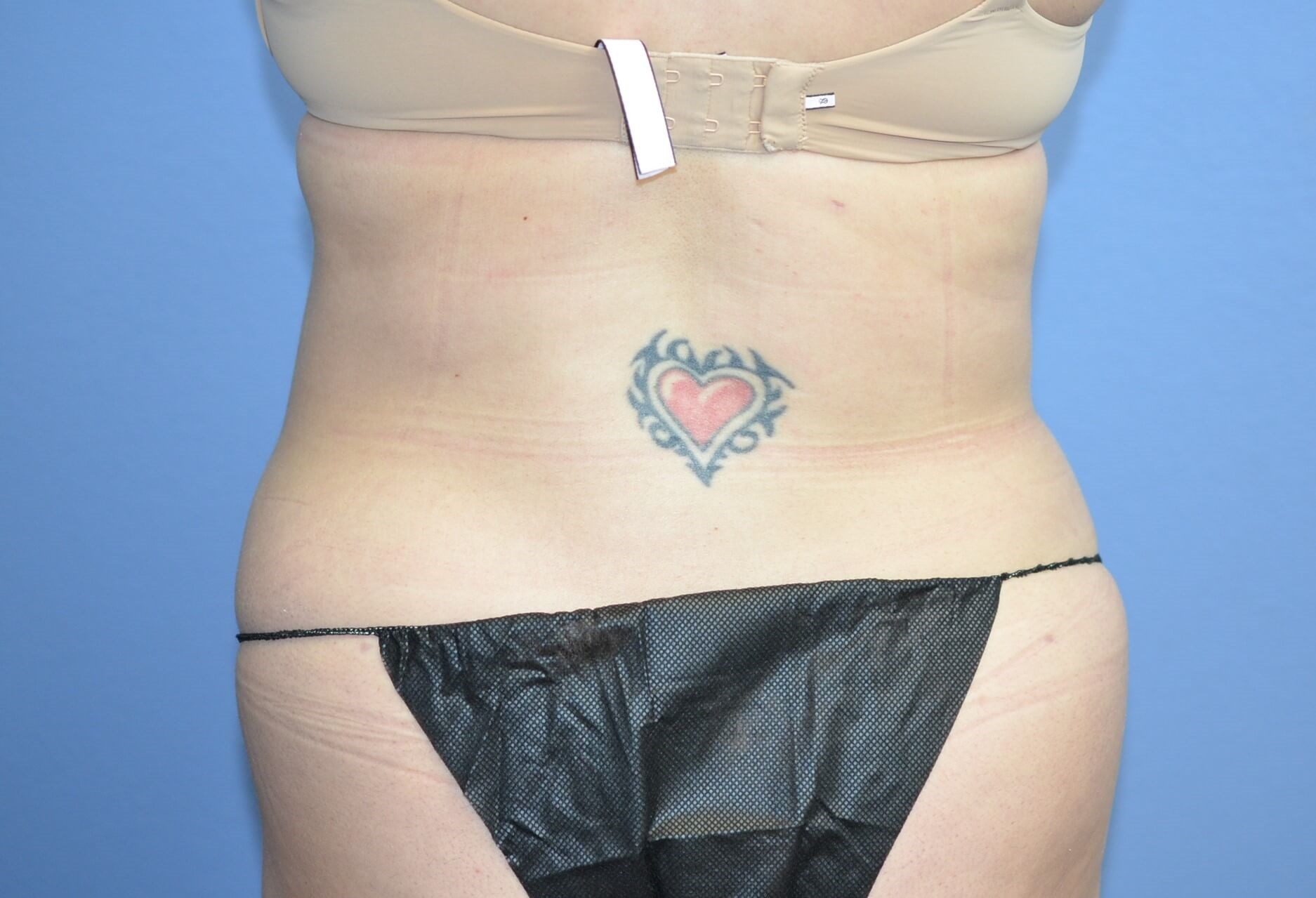Liposuction results After