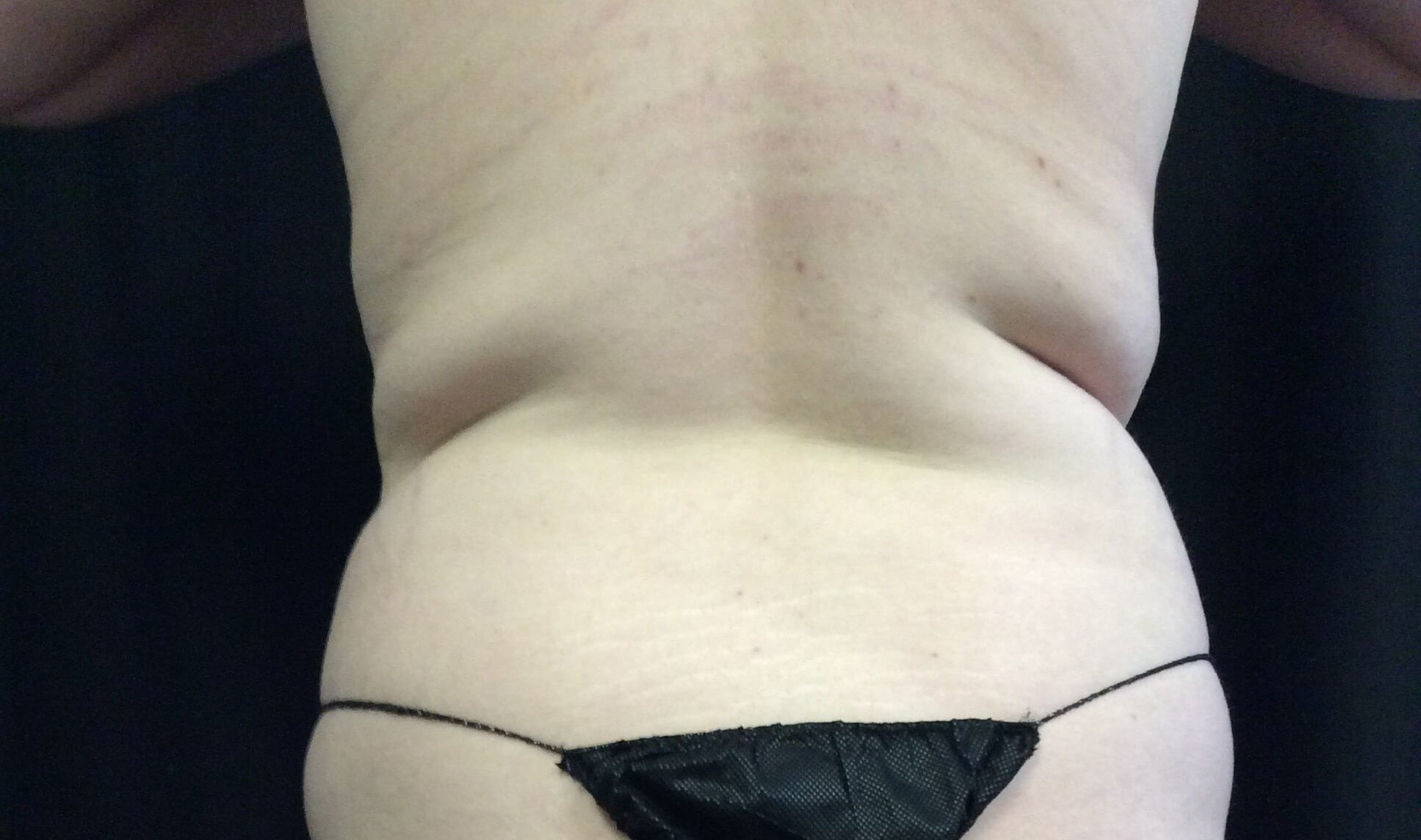COOLSCULPTING RESULTS Before
