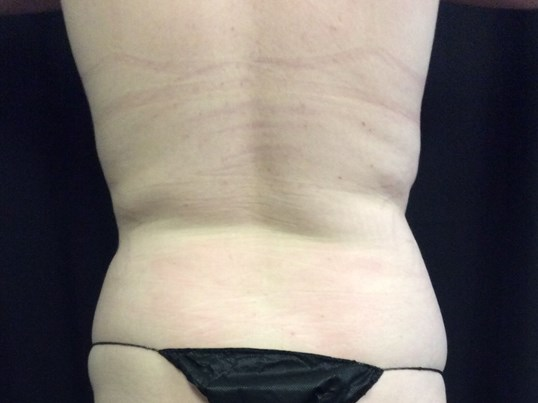 COOLSCULPTING RESULTS After