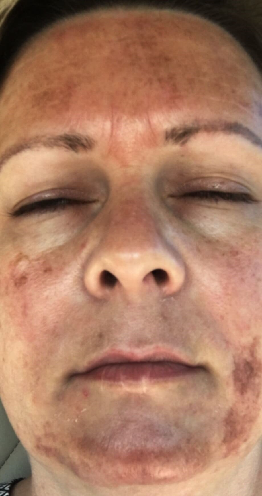 CHEMICAL PEEL RESULTS Before