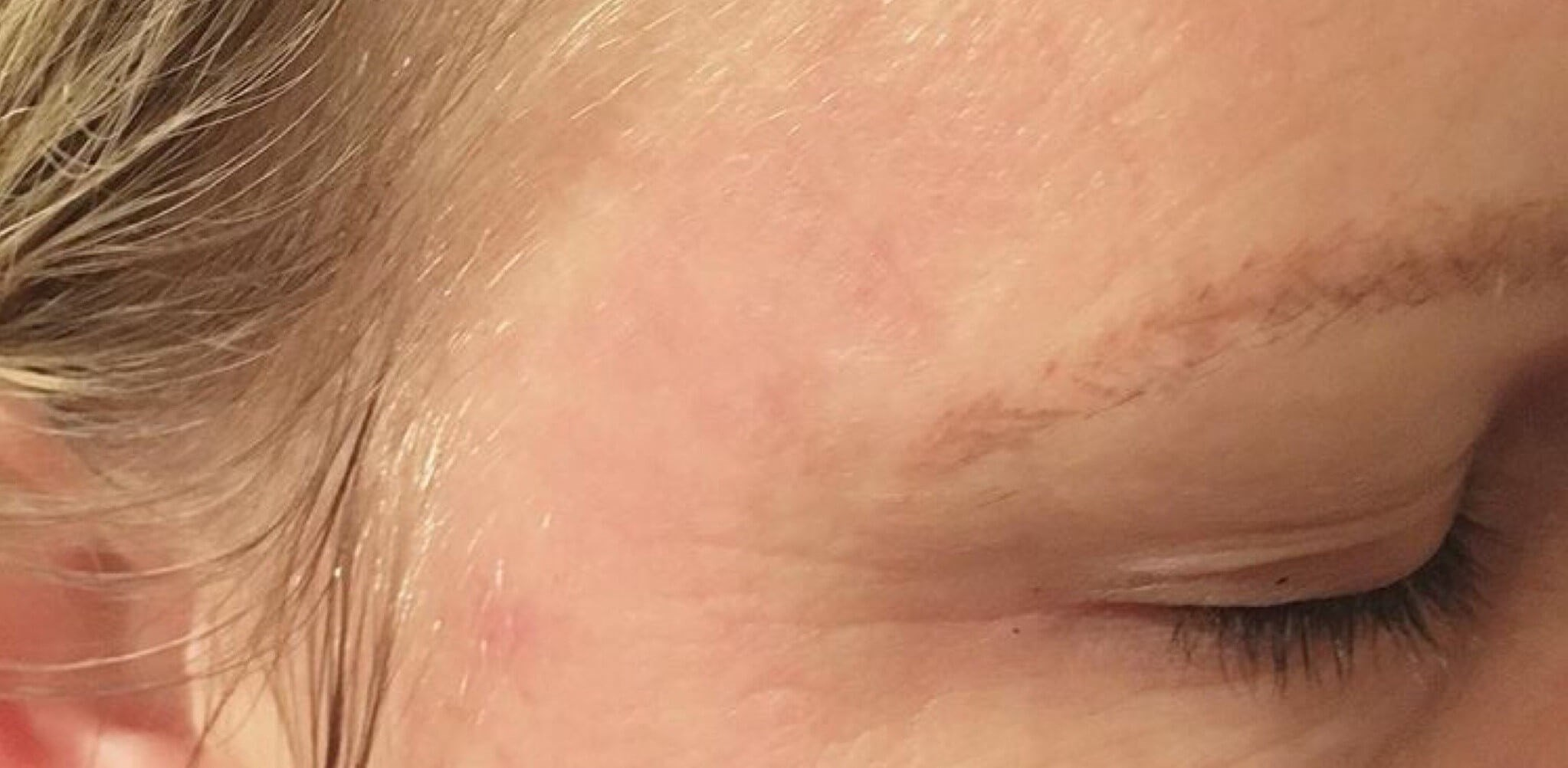 CHEMICAL PEEL RESULTS After