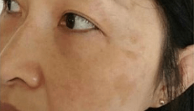 BBL PHOTOFACIAL RESULTS After