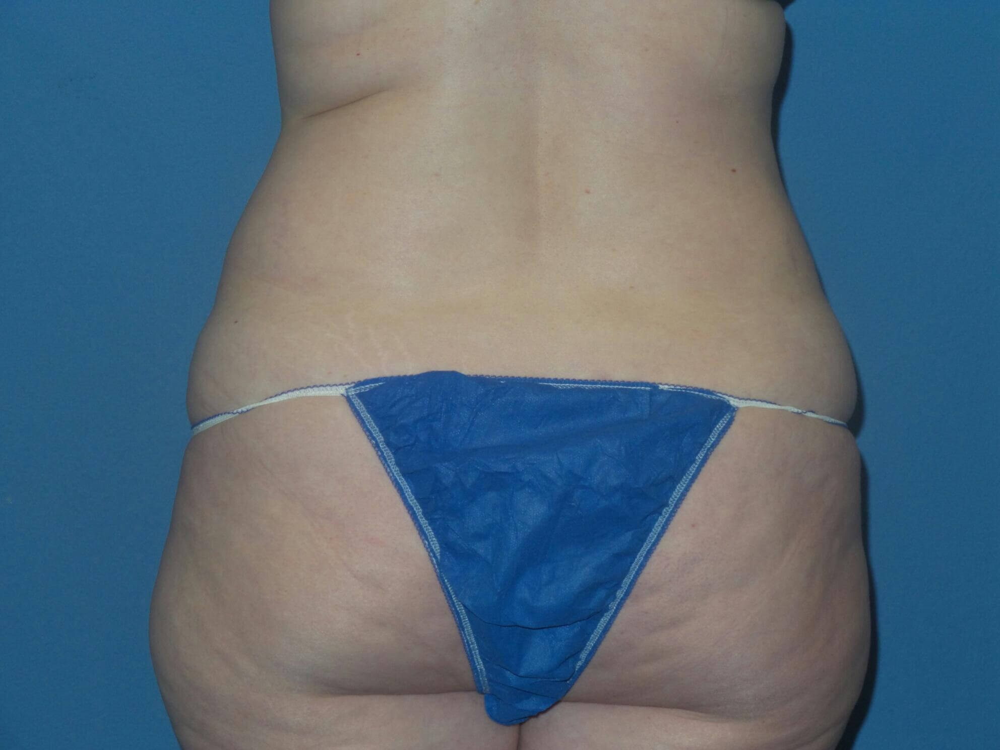 Liposuction results Before