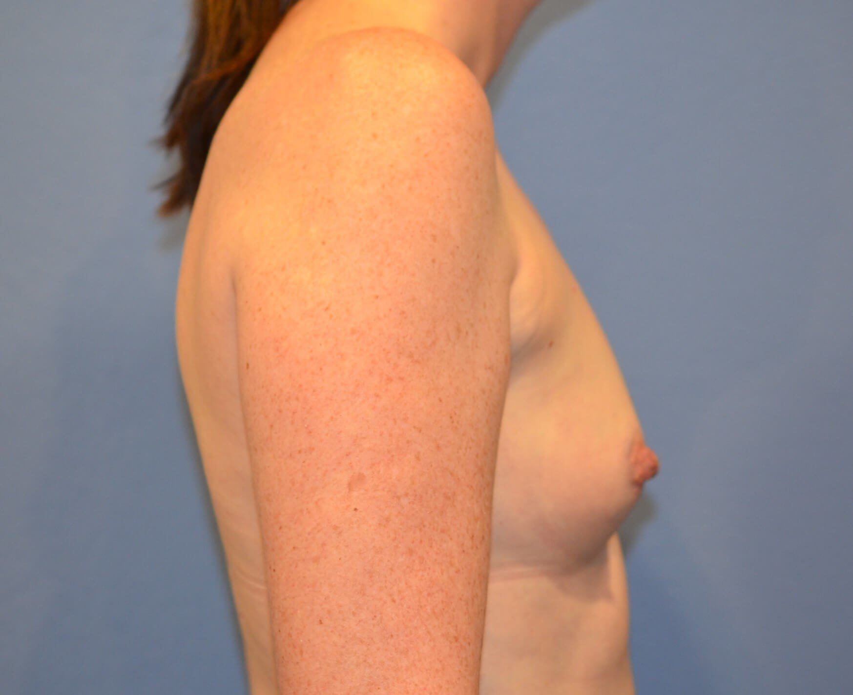 Breast aug results Before