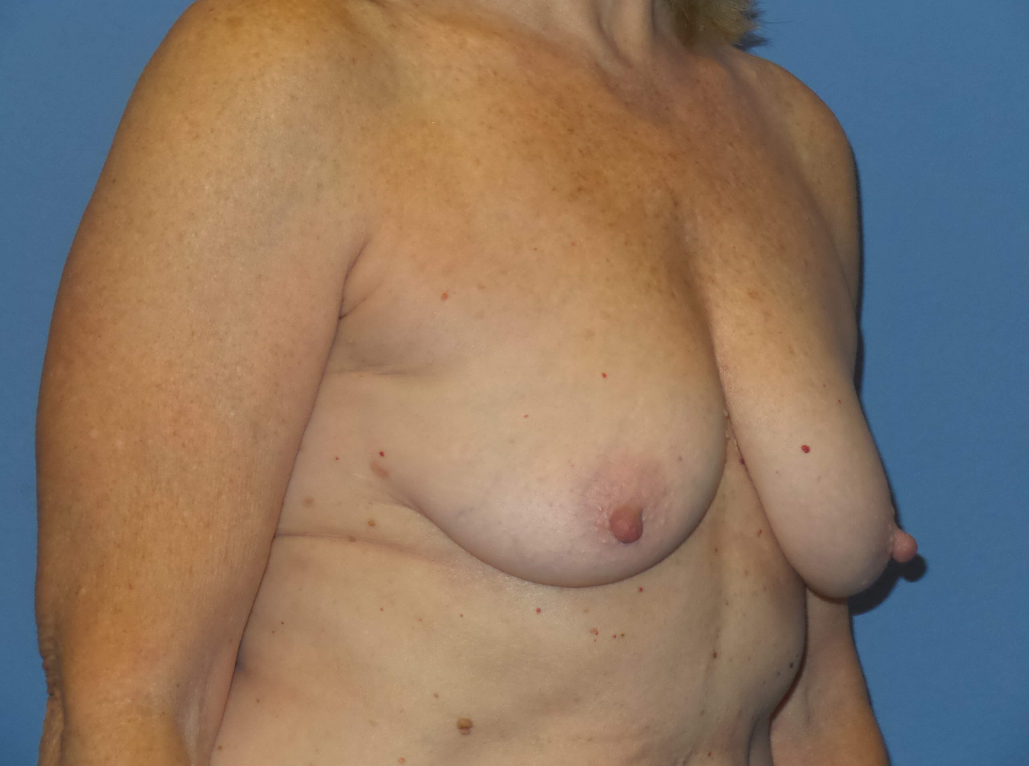 Breast aug/lift results Before