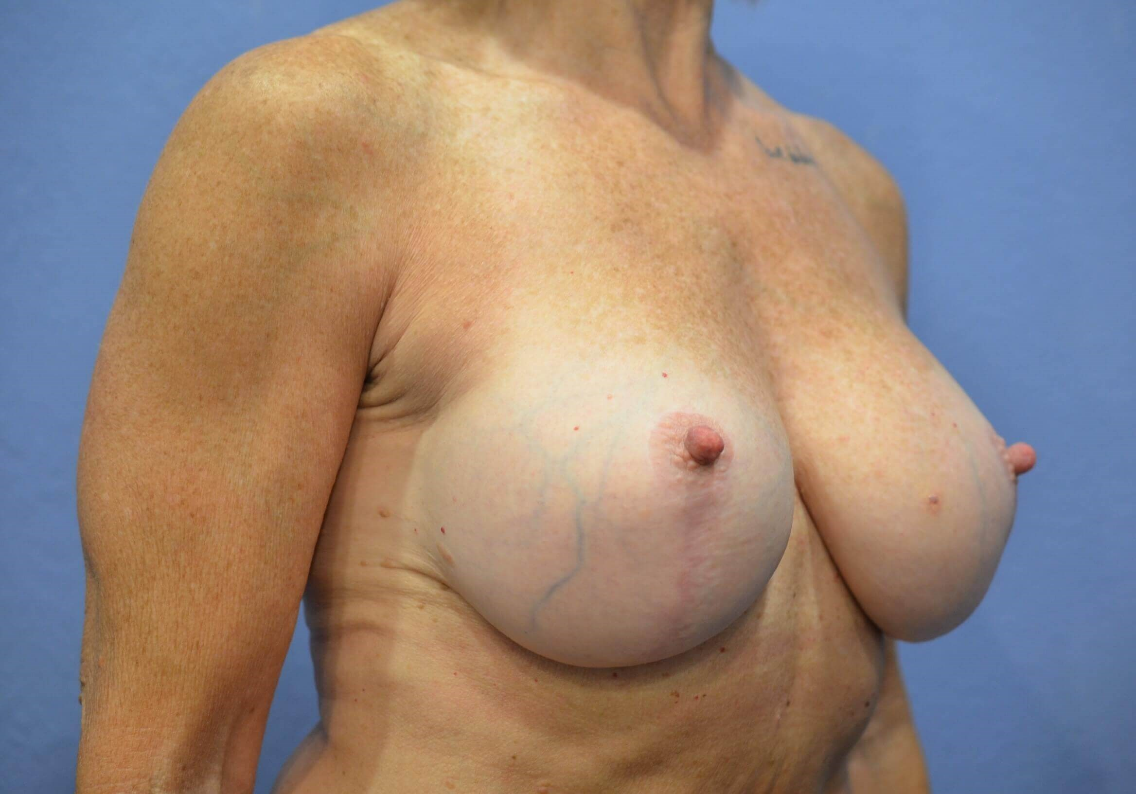Breast aug/lift results After