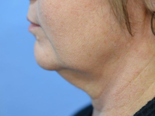 FaceTite procedure for improved neck contouring
