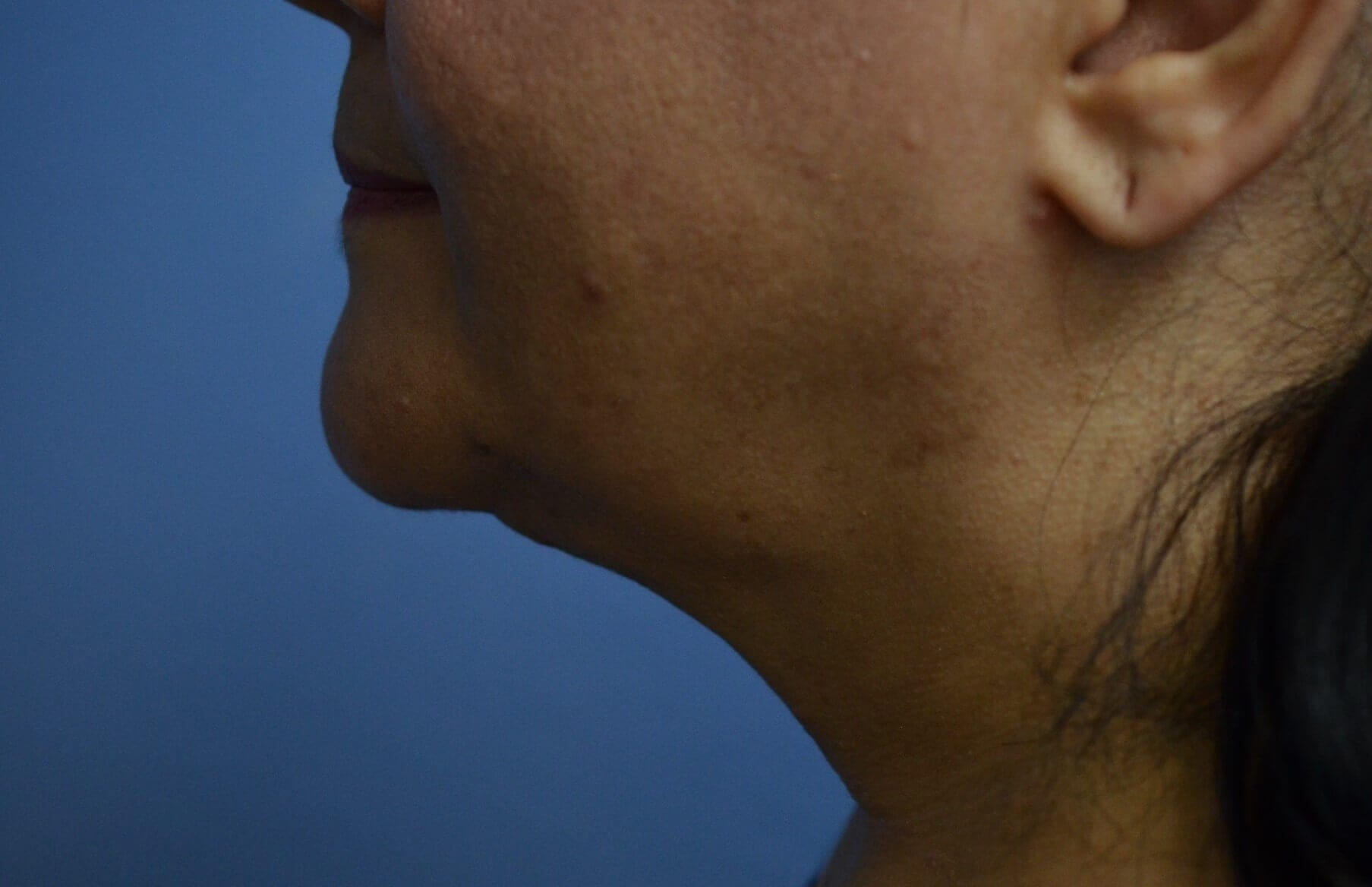 FaceTite procedure performed in McKinney, Texas