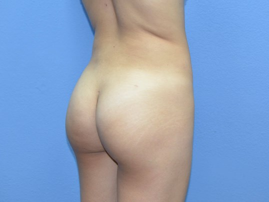Brazilian Butt Lift results After
