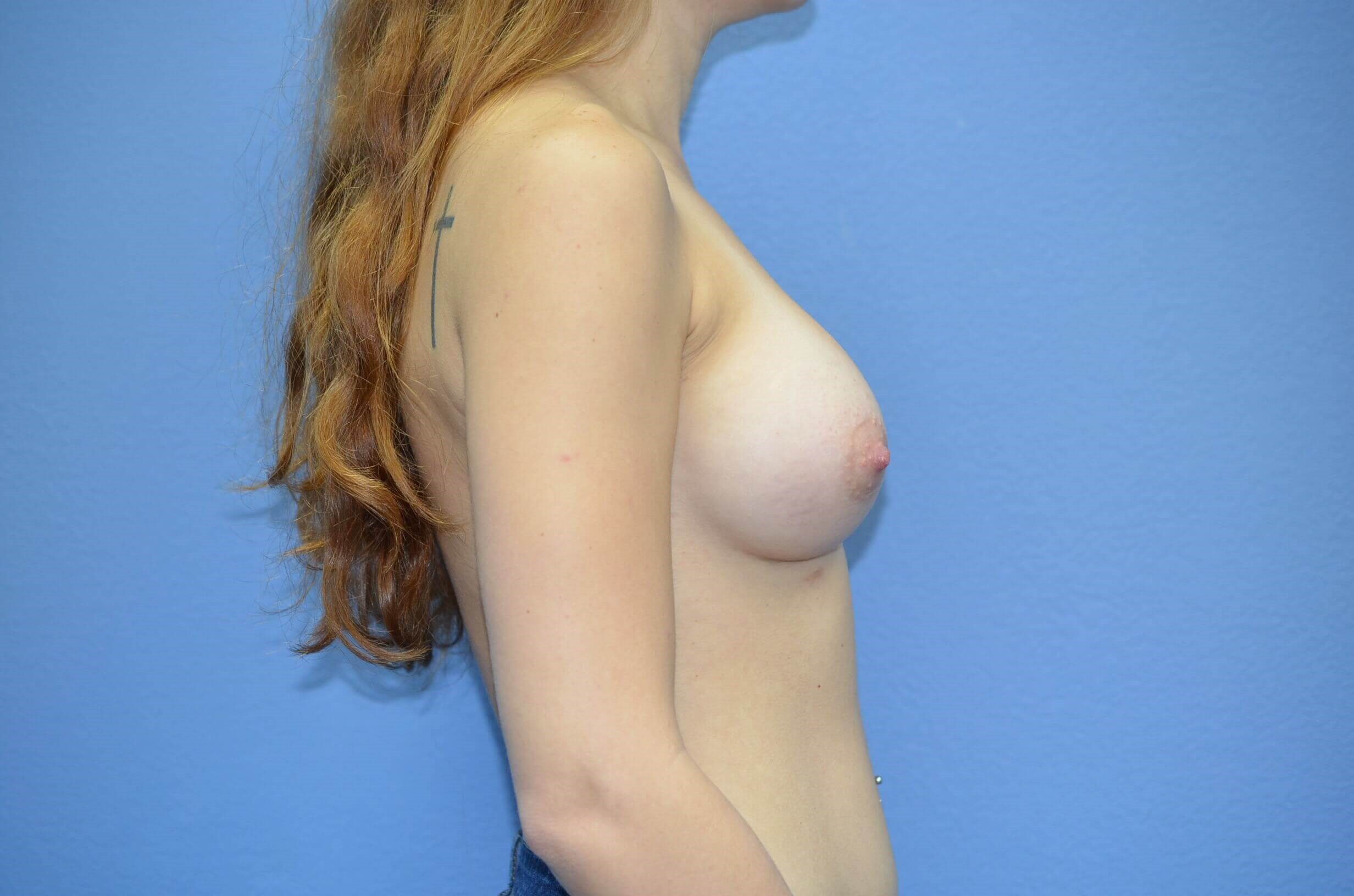 Breast aug results After